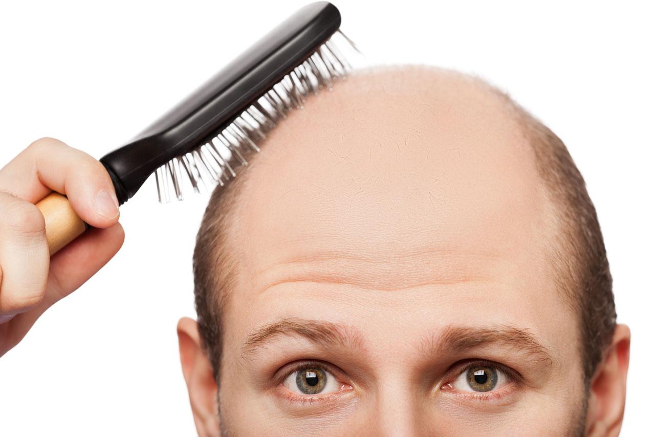 Caduta dei capelli: stop